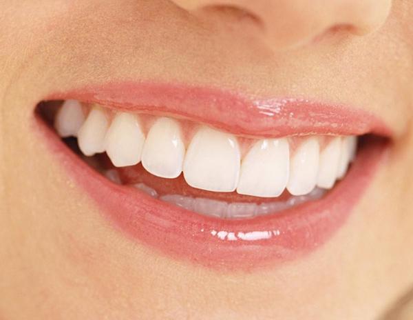 Nha sĩ giải đáp Giá trồng răng sứ bao nhiêu tiền?