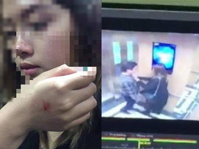 Vụ cưỡng ép hôn nữ sinh bị phạt 200 nghìn: Ở nước ngoài, tội này có thể phải đi tù