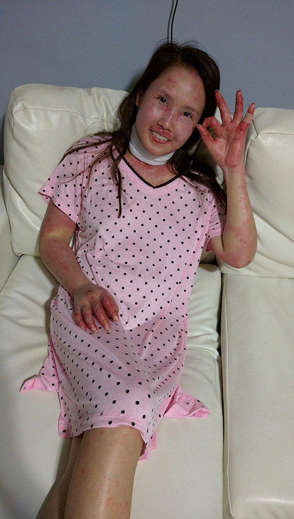 Mắc bệnh giống Selena Gomez, mẹ Việt xinh đẹp mang bầu chịu cảnh da nứt toang, ăn qua ống thở - 3
