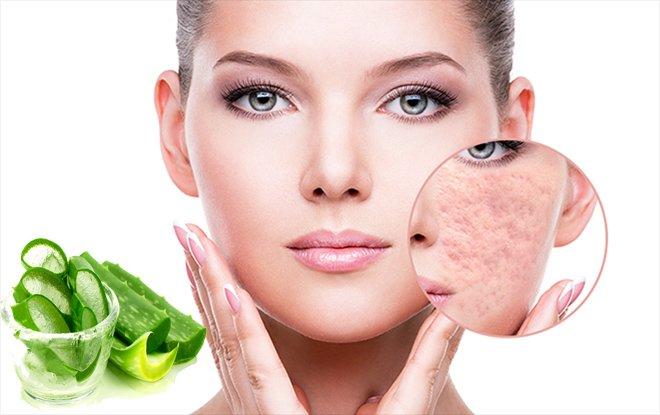 Cách trị sẹo rỗ lâu năm an toàn hiệu quả nhất từ nguyên liệu dễ kiếm - 9