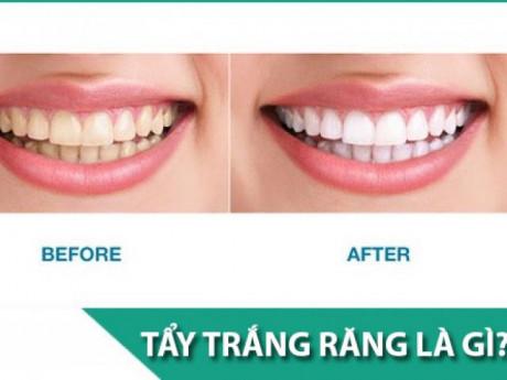 Tẩy trắng răng có hại gì với sức khỏe và có đau không?