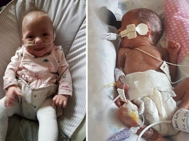 Chào đời ở tuần 25 giữa đại dịch Covid-19, em bé triệu đô sống sót thần kỳ