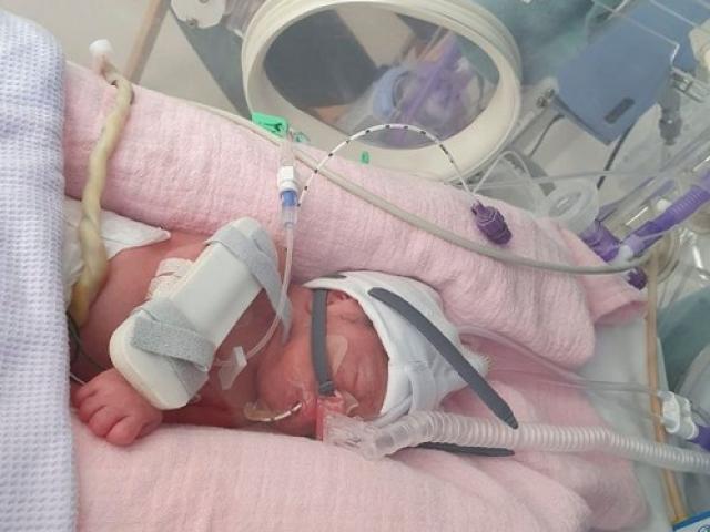 Phải sinh con sớm 10 tuần, bà mẹ không thể chạm vào người con do da quá độc
