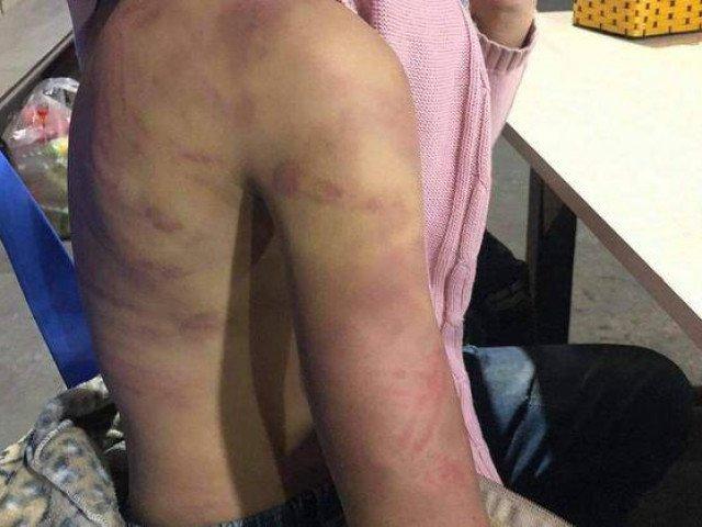 Vụ bé gái 12 tuổi nghi bị bạo hành, hiếp dâm: Hé lộ tuổi thơ đặc biệt của người mẹ