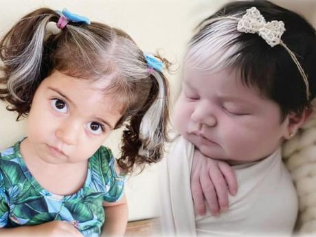 Bé gái sinh ra với mái tóc có mảng trắng như tóc người già nhưng mẹ không hề thấy lạ