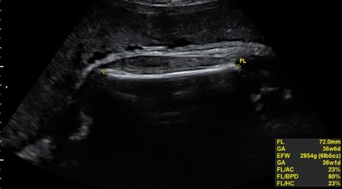 Chiều dài xương đùi thai nhi theo tuần nói lên điều gì và bảng chỉ số chuẩn - 1