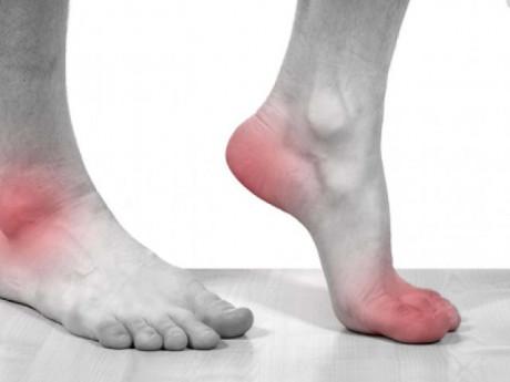 Bệnh gout nên ăn gì? Thực phẩm tốt cho người bệnh gout