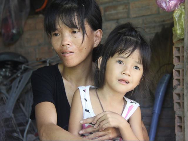 Mẹ khờ khạo sinh 2 con gái đều không biết bố là ai, nhìn bé út bao người xót xa