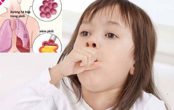 Viêm phổi: Dấu hiệu nhận biết, cách điều trị và chăm sóc trẻ - 3