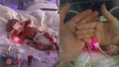 Bé sơ sinh nặng 0,3 kg, chỉ có 5% cơ hội sống sót giờ ra sao?