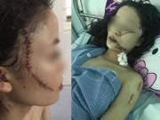 Tin tức - Tin tức 24h: Nguyên nhân bất ngờ khiến thiếu nữ 18 tuổi xinh đẹp bị rạch mặt, khâu 60 mũi