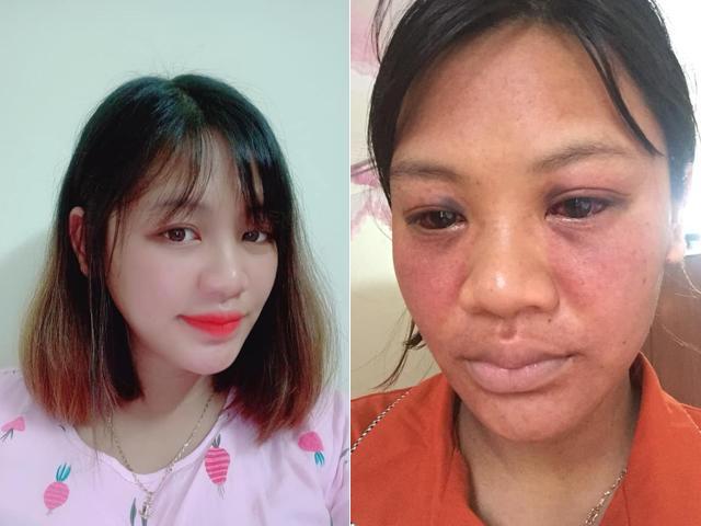 Mẹ trẻ 1995 sau sinh mắt đỏ lòm, người nhà nhận không ra vì... rặn đẻ sai cách