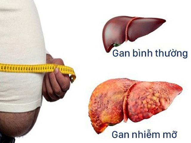 Gan nhiễm mỡ: Triệu chứng, nguyên nhân và cách điều trị