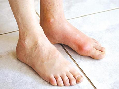 Bệnh Gout: Triệu chứng, điều trị và cách ăn uống hạn chế bệnh