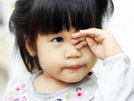5 việc phải làm trong ngày hè để tránh xa bệnh đau mắt đỏ