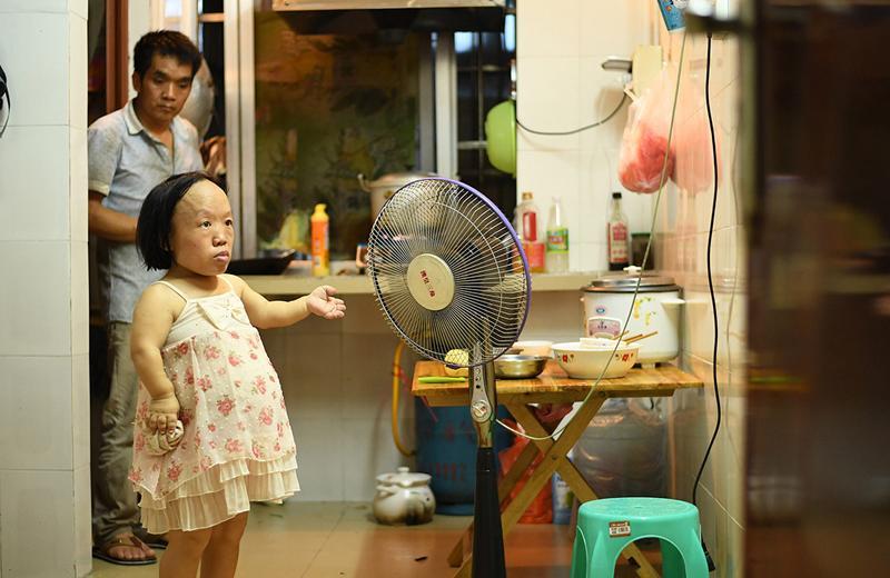 Câu chuyện mang bầu của bà mẹ khiếm khuyết nhưng đầy nghị lực Vi Xuân Lan (33 tuổi, sống tại Thượng Lâm, Nam Ninh, Trung Quốc) từng khiến nhiều người rơi nước mắt vì xúc động và cảm phục.