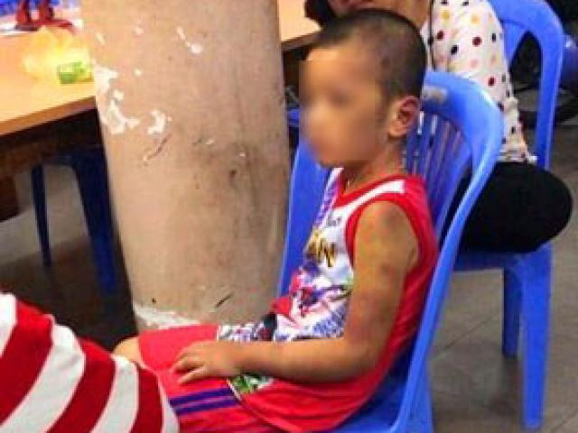 Mẹ và bạn tình đồng tính bạo hành con: Bé bị tra tấn hằng ngày bằng tay chân, cán chổi