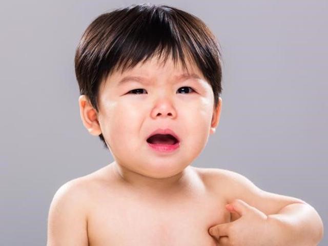 Dị ứng ở trẻ là gì? Bác sĩ chỉ rõ dấu hiệu nhận biết