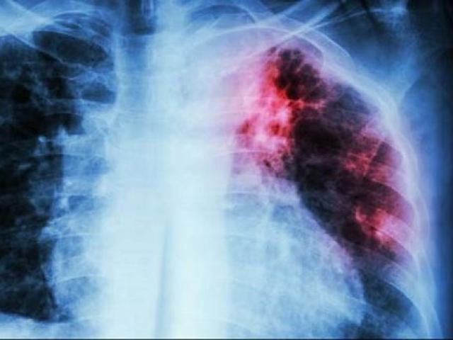Cô gái trẻ bị vi khuẩn ăn mòn phổi vì suốt 2 năm chỉ ăn duy nhất đồ ăn vặt