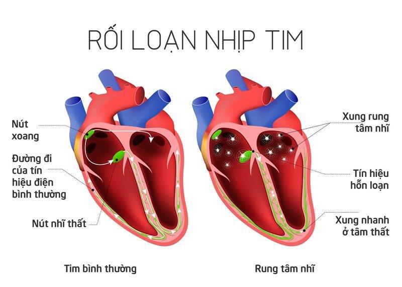 Dấu hiệu bệnh tim thường gặp cần lưu ý - 5