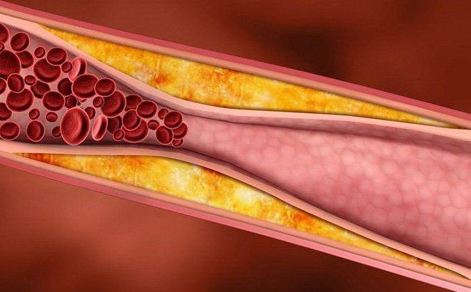 thuc pham nao nhieu cholesterol va cach giam cholesterol hieu qua - 5