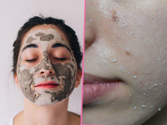 Chăm sóc da dầu mùa hè bạn nhất định phải biết 5 bí quyết này để mụn không bùng phát