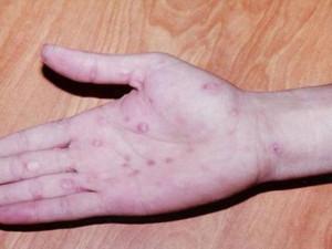 Bệnh lậu bao lâu thì khỏi? Dấu hiệu và cách điều trị bệnh