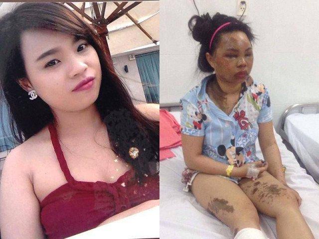 Cô gái xinh đẹp bị tạt axit: Đó không phải em mà là một khuôn mặt gớm ghiếc