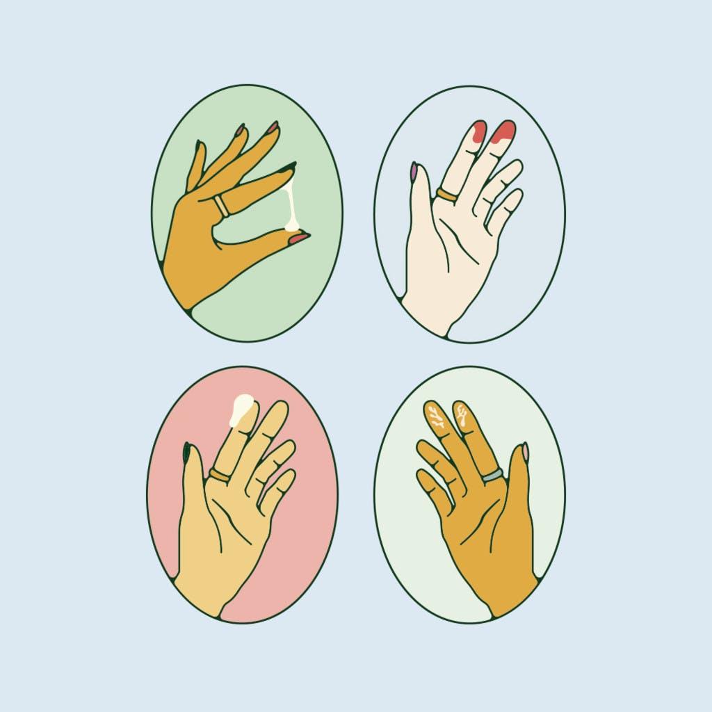 Nguyên nhân và cách chữa khí hư có mùi hôi - 1