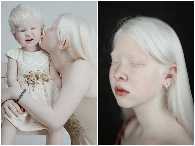 Vẻ đẹp độc đáo của chị em bạch tạng nổi tiếng thế giới nhưng có em trai khác hoàn toàn