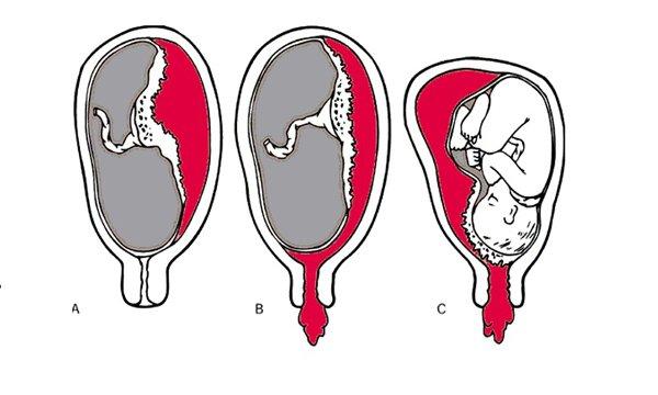 Ra máu khi mang thai: Nguyên nhân và cách xử lý - 4