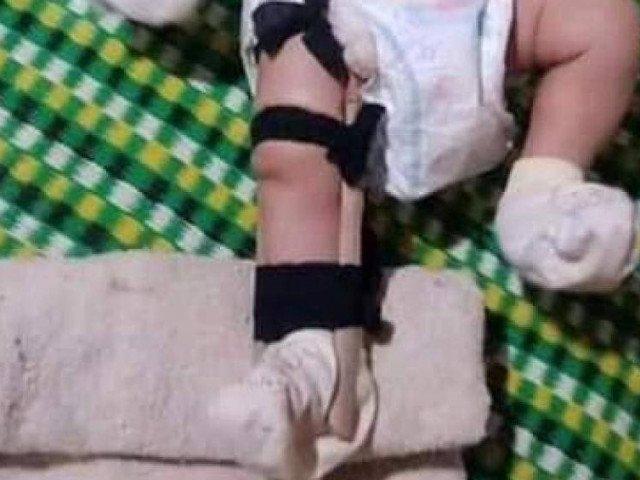 Phẫn nộ người cha bạo hành, đánh con 2 tháng tuổi gãy chân ở Bình Phước