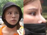 Tin tức - Chi 65 triệu để phẫu thuật thẩm mỹ, cô gái nhận về khuôn mặt không thể thất vọng hơn