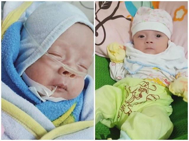 Mẹ Hà Nội 15 năm mới có thai, sinh đôi sớm 28 tuần bác sĩ không cho nhìn mặt con