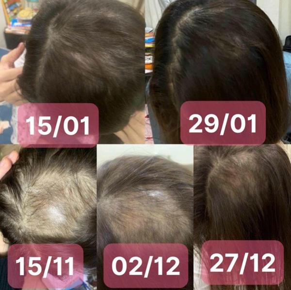 Giải pháp đột phá chấm dứt ác mộng rụng tóc cho phụ nữ