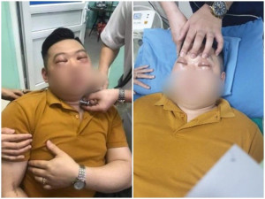 Nam thanh niên nguy kịch vì 1 củ hành, cách xử lý sốc phản vệ theo Bộ Y tế