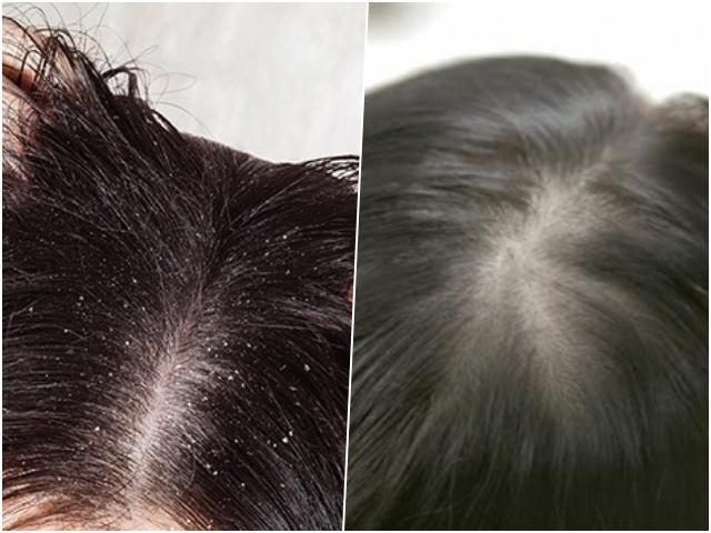 CĐM truyền tay nhau công thức trị tóc bết, nặng đô như đổ dầu nhớt cũng chữa được