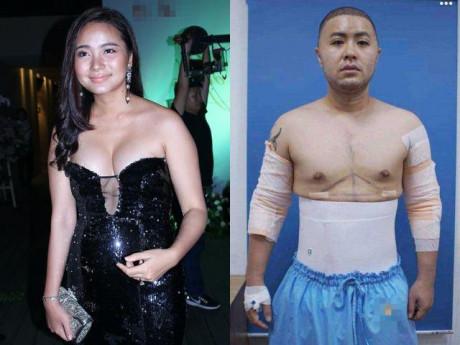 Sao Việt đột ngột phát tướng, lộ bụng mỡ: Người nhanh chóng đi phẫu thuật, người mặc kệ dư luận