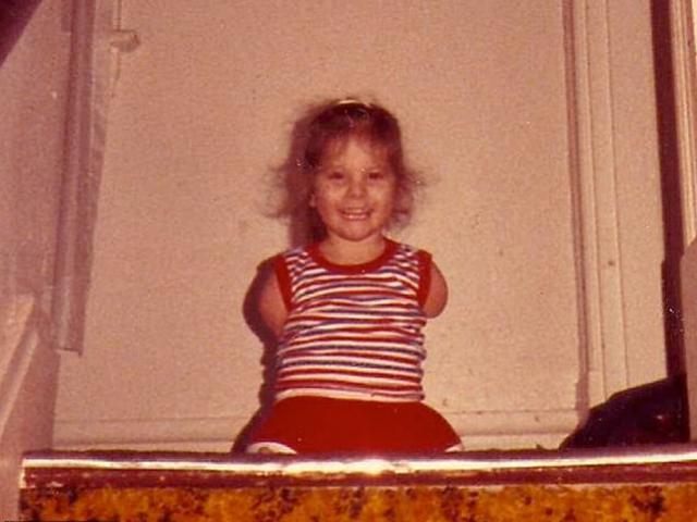 Hình ảnh bất ngờ của bé gái bị bố mẹ ruột ruồng bỏ 37 năm trước vì không tay chân