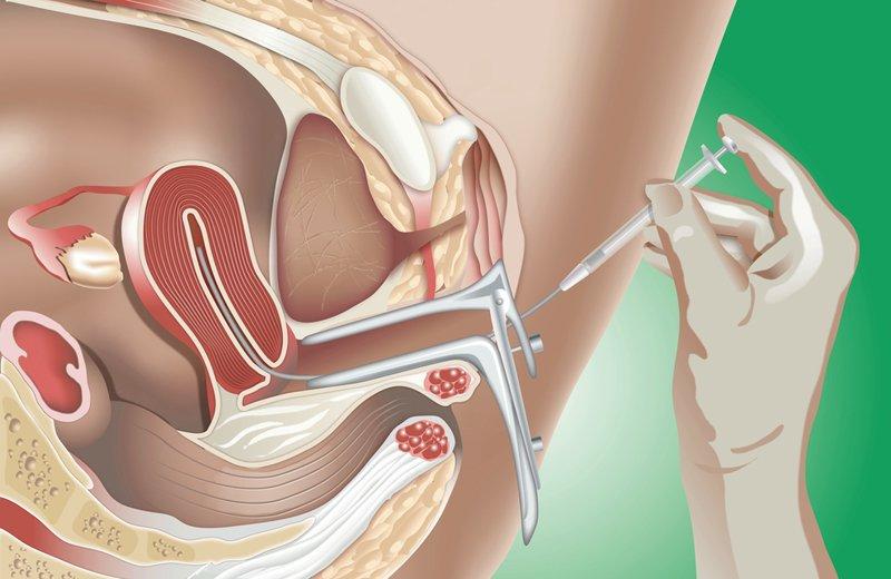 Thụ tinh nhân tạo bằng phương pháp bơm tinh trùng vào buồng tử cung (IUI) là phương pháp điều trị vô sinh đầu tay và được áp dụng từ lâu.