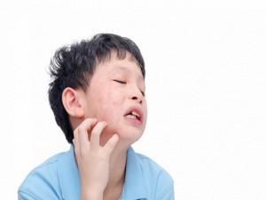 Trẻ bị quai bị: Bác sĩ chỉ rõ dấu hiệu nhận biết và cách phòng ngừa hiệu quả