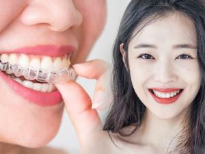 Niềng răng thẩm mỹ và những điều bạn nên cần biết