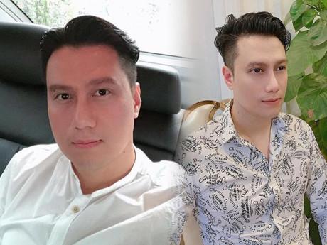 """Vẫn câu chuyện gương mặt Việt Anh sau """"dao kéo"""", liệu đây có phải kết quả cuối cùng?"""