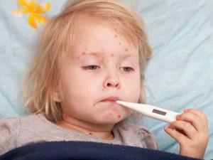 12 triệu chứng sốt siêu vi dễ nhận biết nhất ở trẻ em