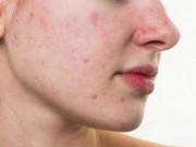 Da mặt bị sần, nguyên nhân do đâu?
