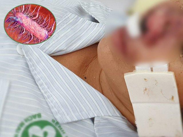 Những người nào dễ bị vi khuẩn ăn mòn cơ thể Whitmore tấn công