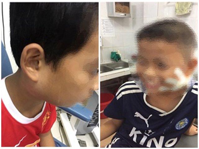 Thông tin mới nhất về sức khỏe 3 trẻ mắc vi khuẩn ăn mòn cơ thể Whitmore tại Nghệ An