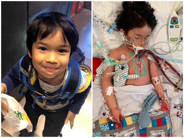 Bé 4 tuổi suýt chết vì nhiễm trùng máu do vi khuẩn ăn thịt người dễ lây qua hắt hơi