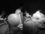 Bác sĩ bất ngờ đón bé gái còn nguyên trong bọc ối khi mổ cho thai phụ mang song thai