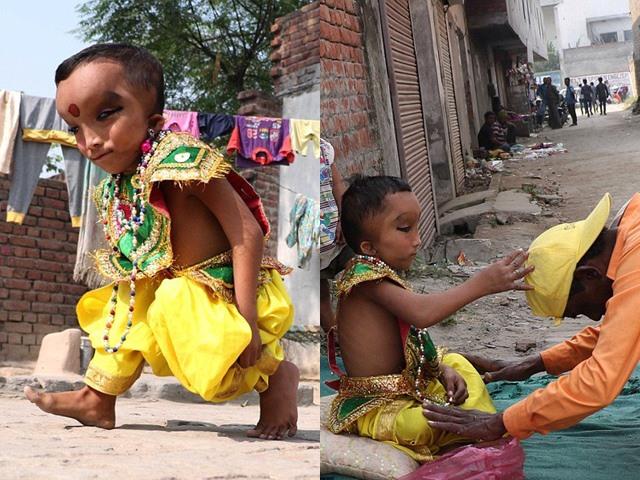 Sinh ra với ngoại hình kỳ dị, bé trai được tôn làm thần, trăm người đến xin ban phước